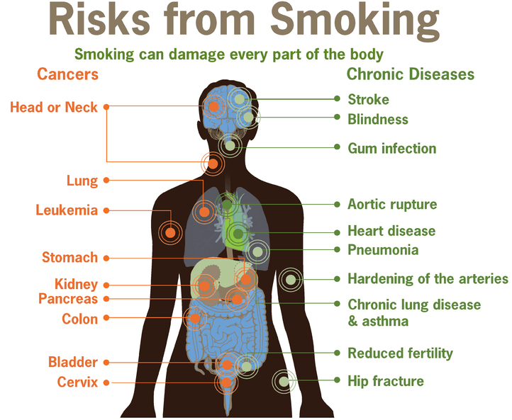 Smoke or Vape? diseases caused by smoking cigarettes